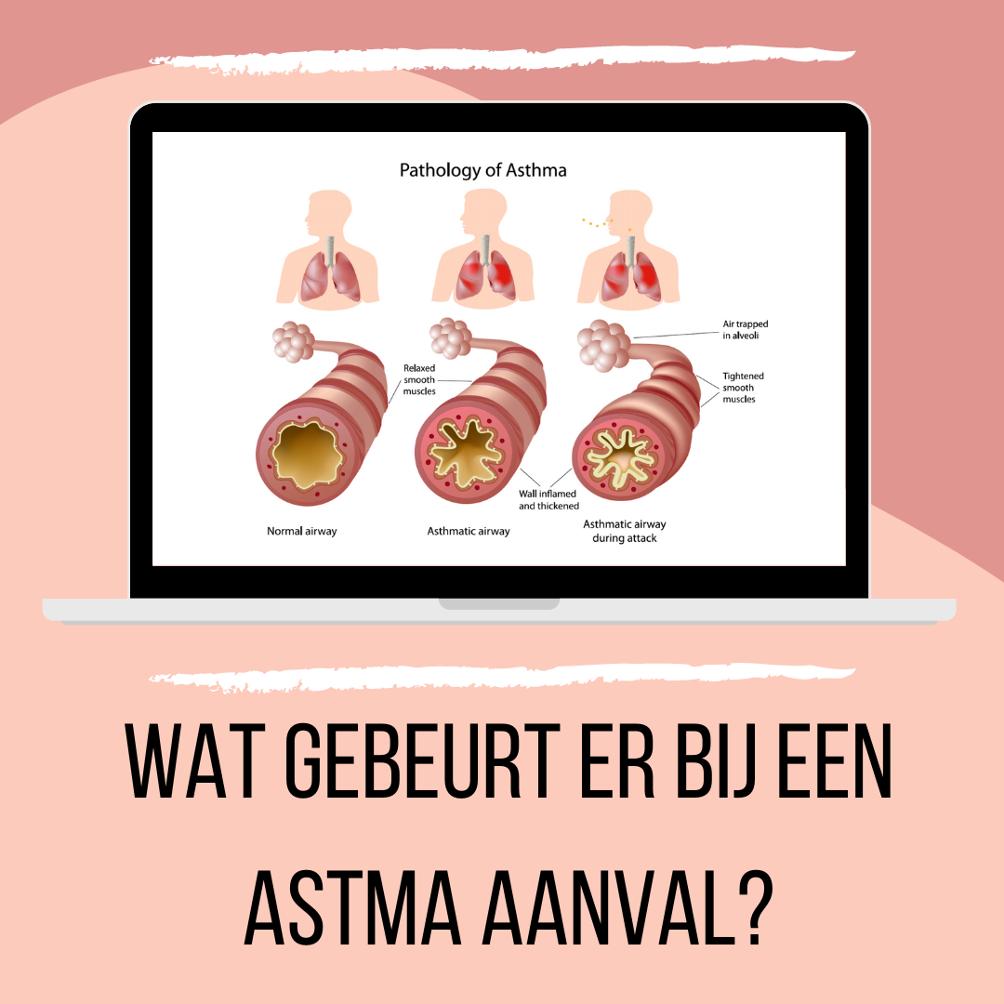 Wat gebeurt er precies tijdens een astma aanval?